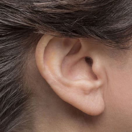 Lyric®: Invisible Hearing Device